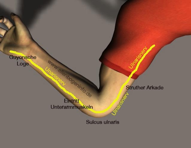 Das Sulcus ulnaris Syndrom